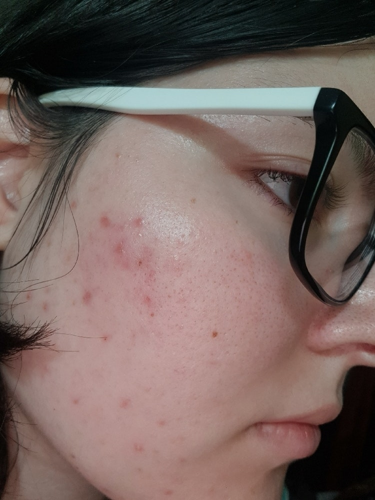 Hi Everyone I Ve Just Started Learning More About Skincare And I Have A Few Questions So I Have Oily Skin And Have Struggled With Acne Specifically Cystic And Fungal Acne And Very