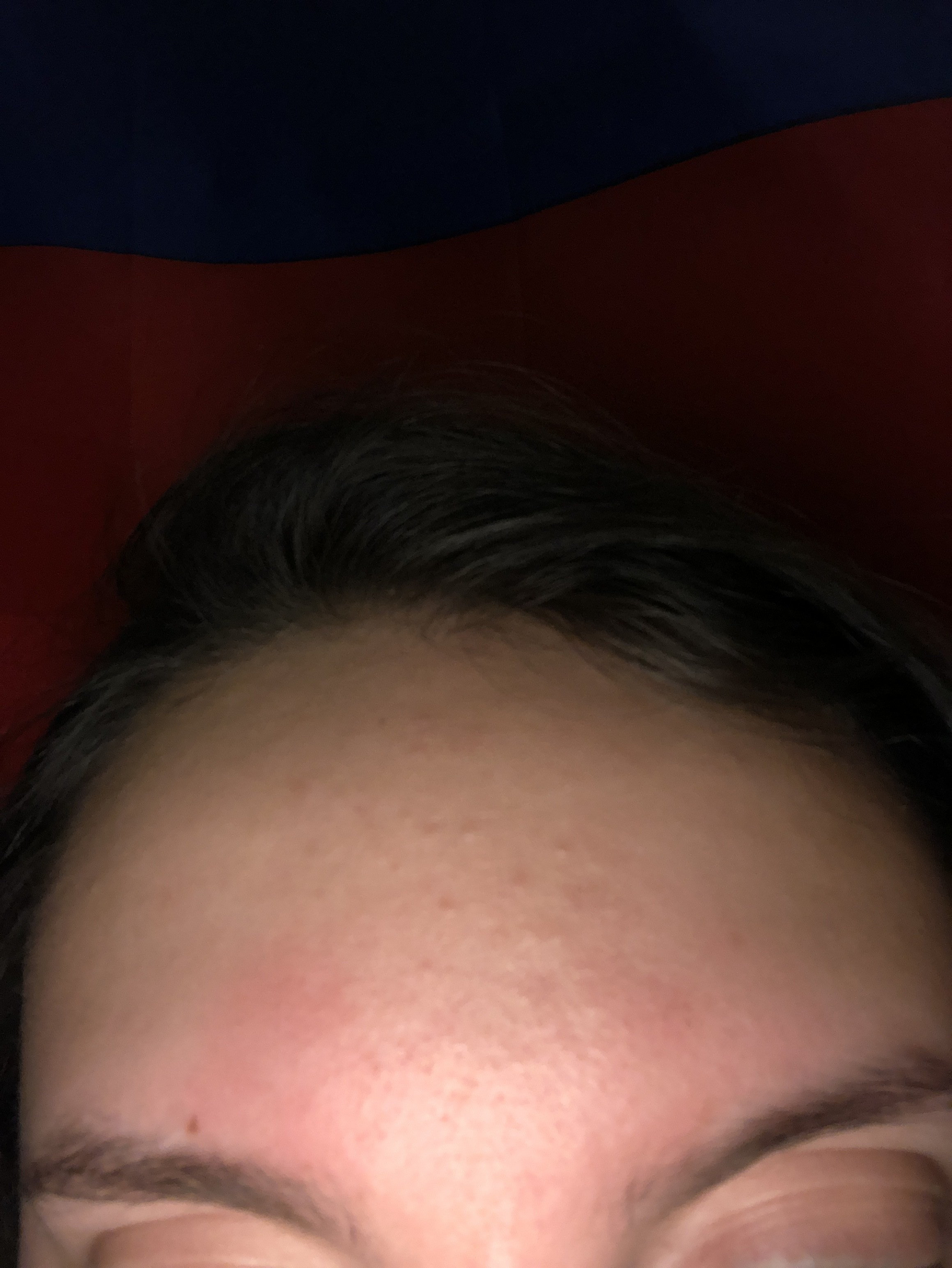 I Have Some Fungal Acne On My Forehead And Chin Any Advice On How To Get Rid Of It Skin Care Junkie